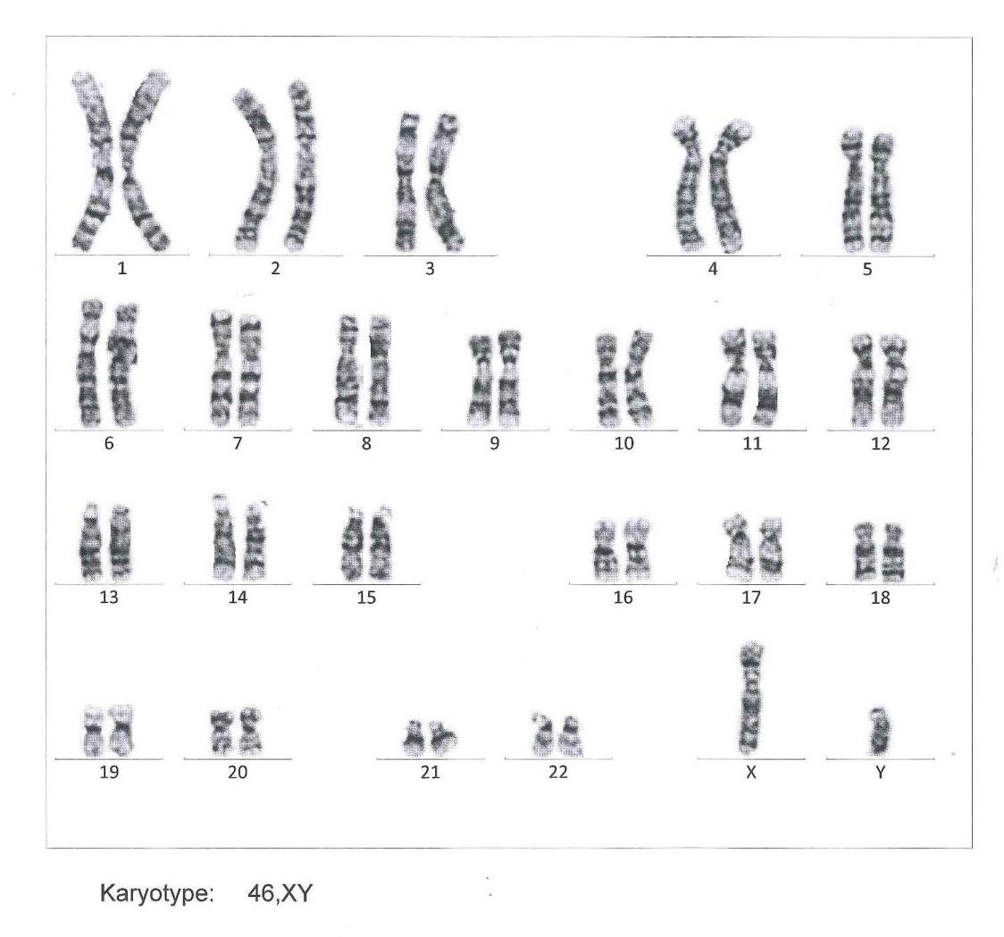 Chromosomal Scan Report_blog